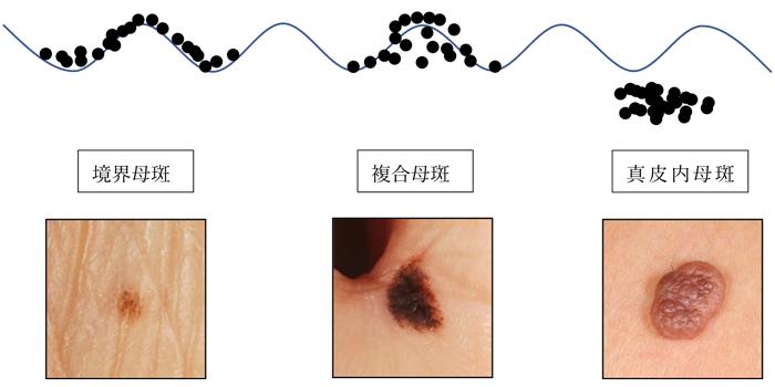 境界母斑 → 複合母斑 → 真皮内母斑 と時間とともに変化します。 ほくろの細胞が深くで増えるにつれてだんだん盛り上がっていきます。
